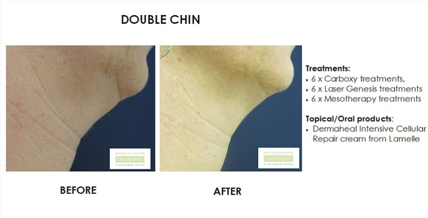 before and after,before, after,double chin, carboxytherapy, laser, mesotherapy, lamelle, fat under chin
