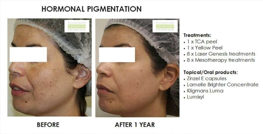 before and after, before, after,Pigmentation,dark spots, TCA peel, Yellow Peel,Lasergenesis,Mesotherapy,Zinzel E,Lamelle,Brighter Concentrate, Kligmans, Lumixyl
