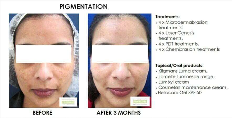 before and after, before, after,pigmentation, dark spots, blemishes, beta peel,melanostop, transdermal mesotherapy, mesotherapy,pdt, chemibrasion, kligmans luma, lamelle, lumixyl,cosmelan, heliocare, spf