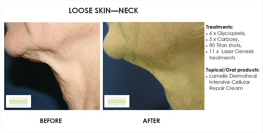 before and after, before, after, Loose skin, crepe skin, ageing neck, neck, wrinkled neck, peels, carboxy, titan, laser genesis, lamelle