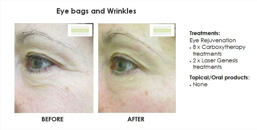 Eye bags and wrinkles - eye rejuvenation with 8 x carboxy treatments, 2 x laser genesis treatments no products  slider image