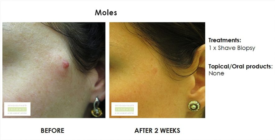 before and after, before, after,mole removal, shave biopsy,mole