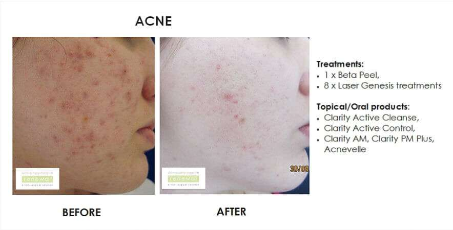 Acne  scarring - beta peel, laser genesis x 8 and homecare products clarity active cleanse, clarity active control, clarity am, clarity pm plus and acnevelle  slider image