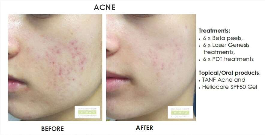 6 x beta peels, 6 x laser genesis treatments, 6 x pdt treatments  products -tanf acne, heliocare  slider image