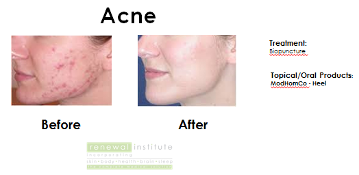 Before and After image for Treatment of Rosacea with Biopuncture