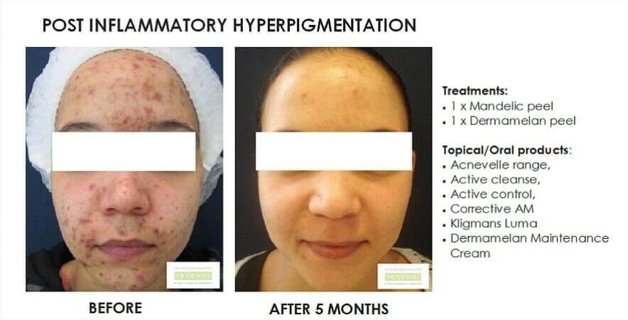 before and after, before, after,Pigmentation,Acne,dark spots, spots, breakouts, blemishes, mandelic