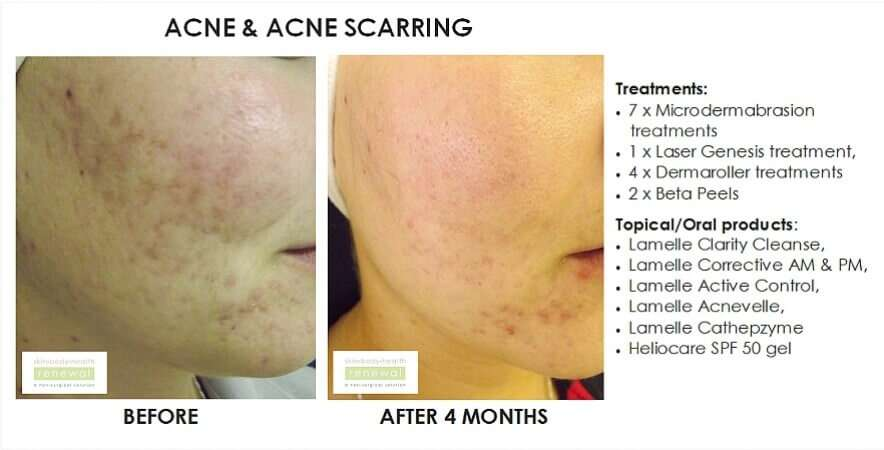 Acne  scarring.7xmicroderm  lg, 4xdermaroller, 2xbeta peel.clarity cleanse, corrective am  pm, active control,acnevelle,lamelle cathepzyme,heliocare spf 50  slider image (1)