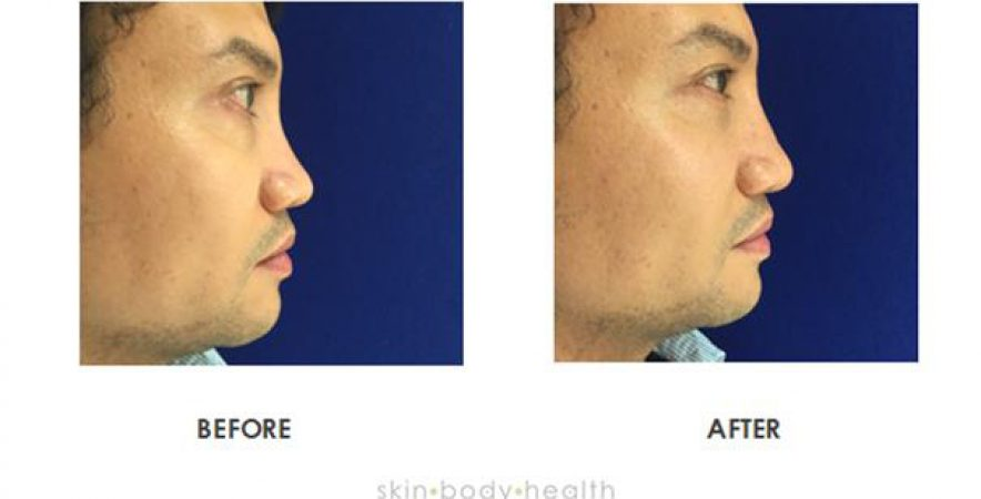 Before and after gallery of rhinoplasty