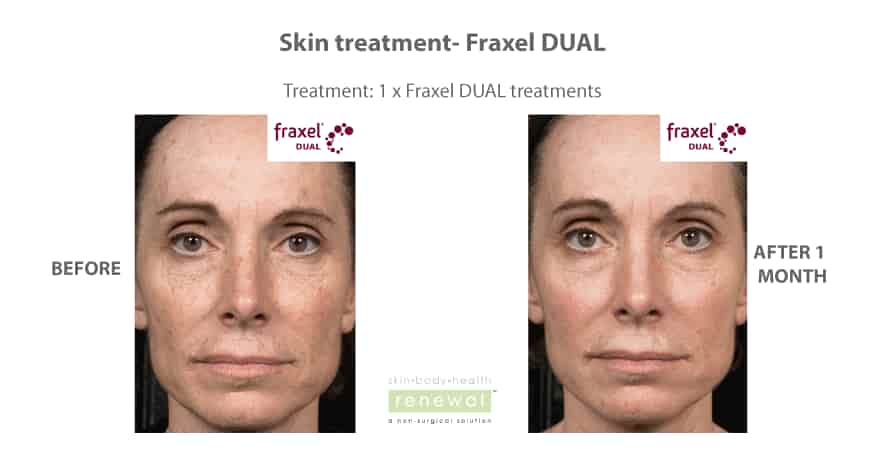 Before-and-after-fraxel-DUAL on face