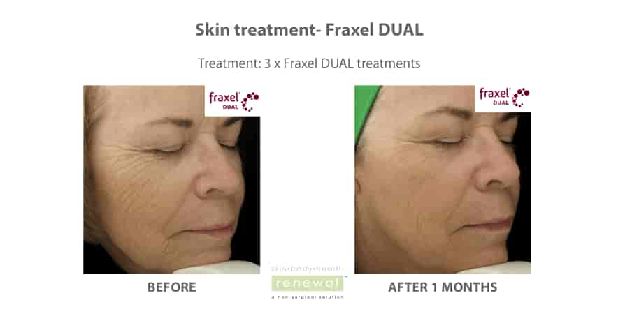 Before-and-after-fraxel-DUAL treatment on the face