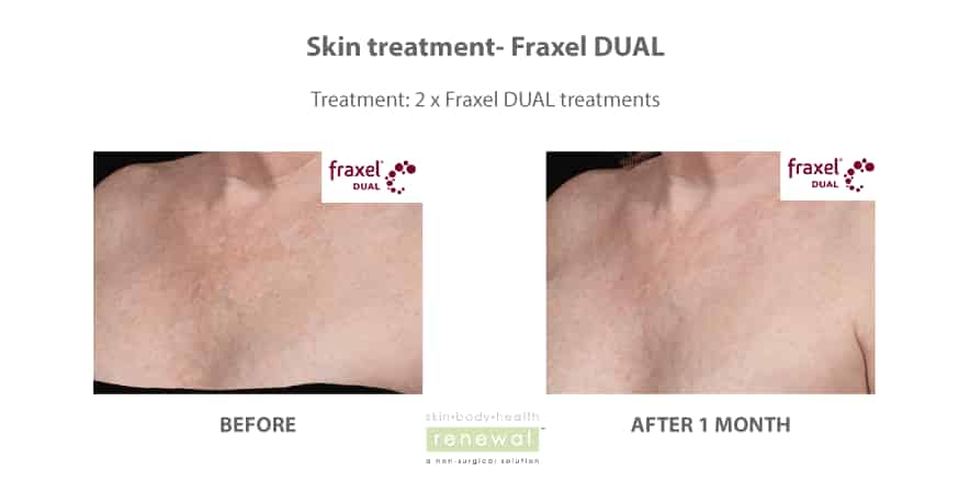 Before-and-after-fraxel-on decolette chest
