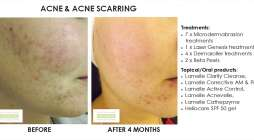 before and after, before, after, acne, acne scarring, microdermabrasion,laser genesis, dermaroller, skin needling,beta peel, chemical peel, clarity, lamlelle,correctives, active control, acnevelle, cathepzyme, heliocare gel sunscreen, spf50