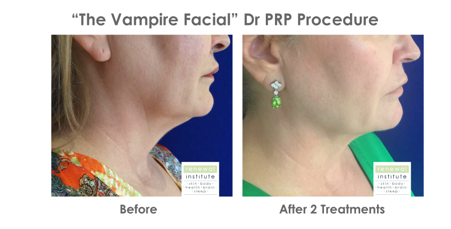 Before-and-after-prp-vampire-facial-jowls-neck-naso-labial-fold