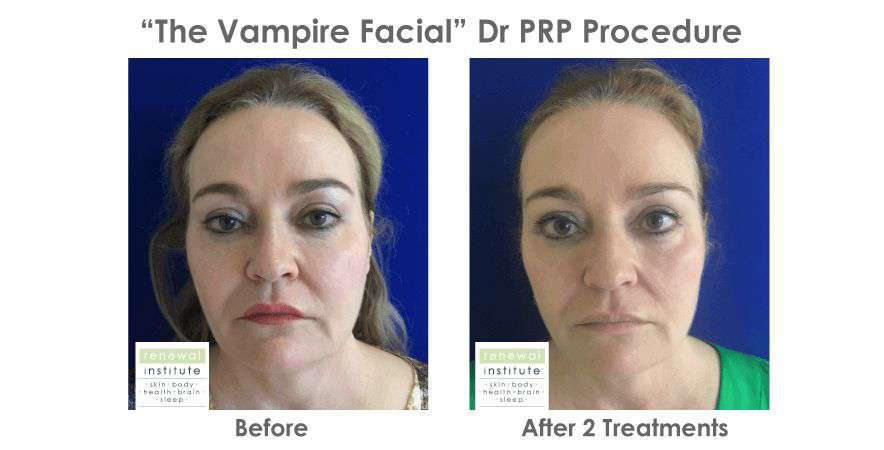Before-and-after-prp-vampire-facial-full-face