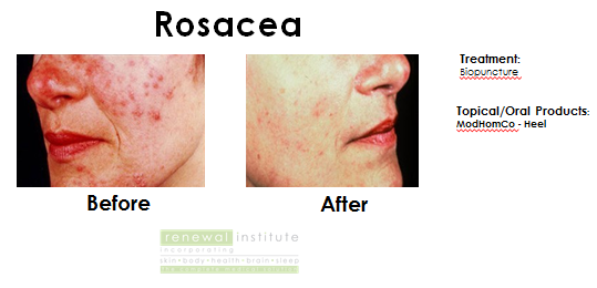 Rosacea Red Skin Limelight Treatment