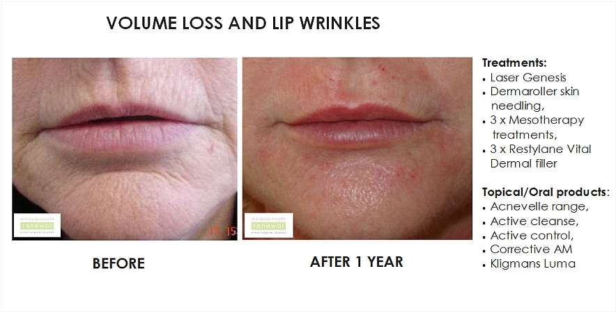 before and after, before, after,Volume loss,lip wrinkles,smokers lines, Laser Genesis, Dermaroller, Skin Needling, Mesotherapy, Restylane Vital, dermal fillers, fillers