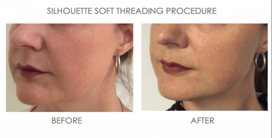 before and after portrait of Threading for volume loss and wrinkles silhouette soft