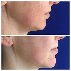 Before and After Chin MD CODES
