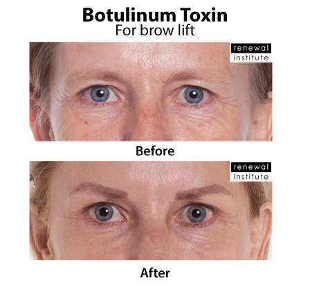 Before And After Botox Dysport For Droopy Brow Lift