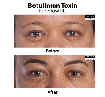 Before And After Botox Dysport For Dark Skin Brow Lift Drooping Brows