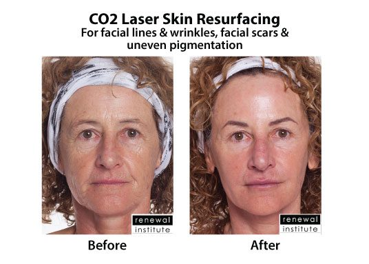 Before And After Co2 Laser Resurfacing Facial Lines Wrinkles And Scars