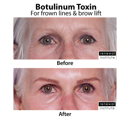 Before And After Botox For Frown Lines And Brow Lift