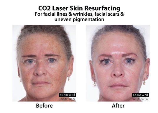 Before And After Co2 Laser Resurfacing Facial Lines Wrinkles And Scars 5