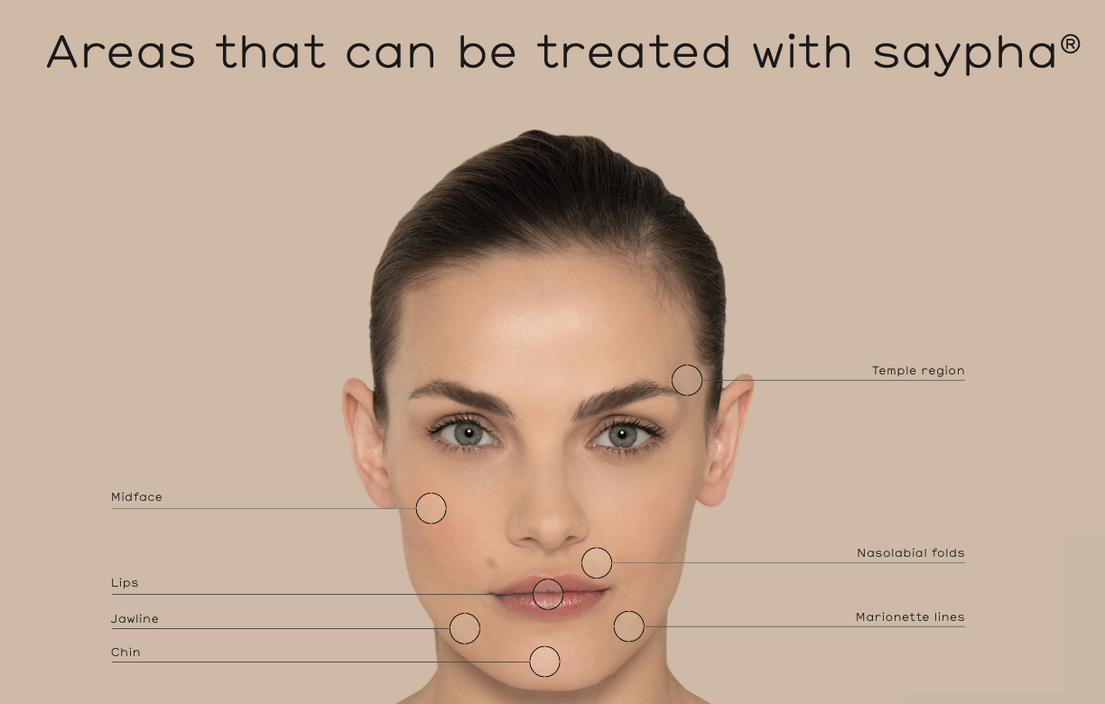Dermal Fillers areas that can be treated