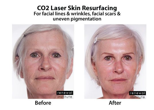 Before And After Co2 Laser Resurfacing Facial Lines Wrinkles And Scars 2