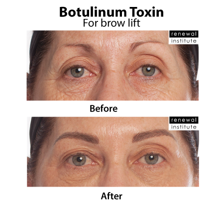 Before And After Botox Dysport For Brow Lift Drooping Brows 1