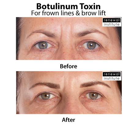 Before And After Botox Dysport For Frown Lines And Brow Lift Wrinkles Sagging