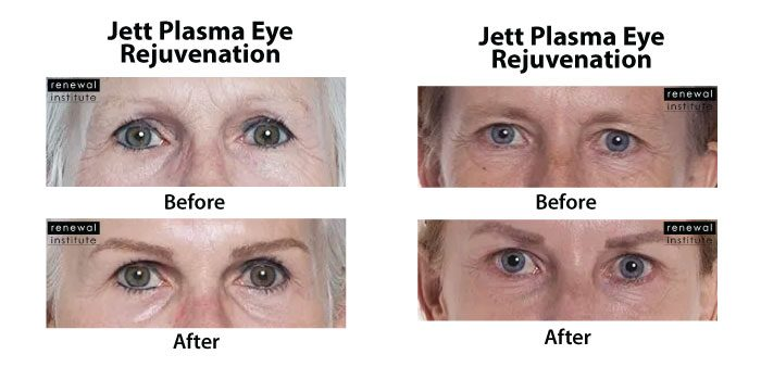 Plasma eyelid lift for wrinkles before and after