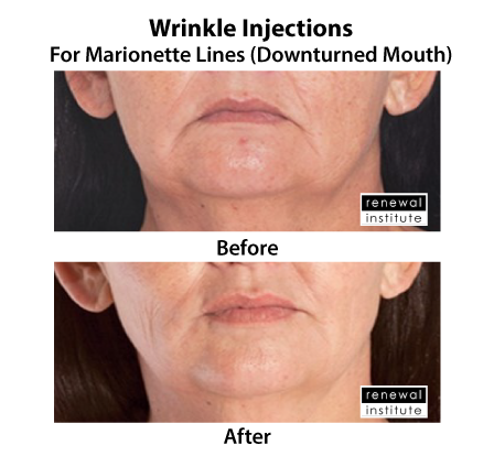 Before And After Dermal Fillers For Marionette Lines 1