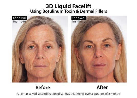 3d Liquid Facelift Botox Dermal Fillers Wrinkles And Sagging 6