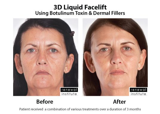 3d Liquid Facelift Botox Dermal Fillers Wrinkles And Sagging 7