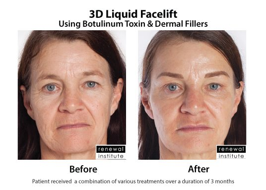 3d Liquid Facelift Botox Dermal Fillers Wrinkles And Sagging
