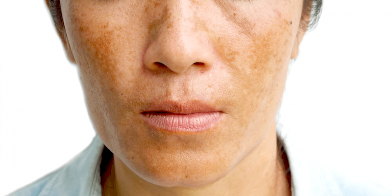 Melasma condition skin renewal
