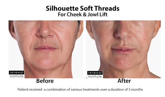 Before And After Silhouette Soft For Cheek And Jowls 3