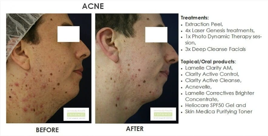 Acne Extraction Peel 4xlaser Genesis 1xphoto Dynamic Therapy 3xdeep Cleanse Facials Lamelle Clarity Range Acnevelle Lamelle Correctives Brighter Concent Heliocare Gel Skinmedica Purify Toner