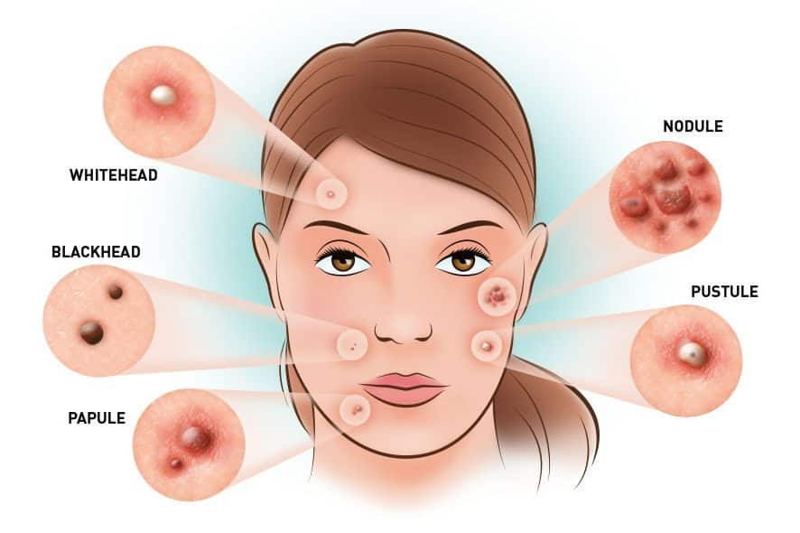Skin Renewal different types of acne lesions