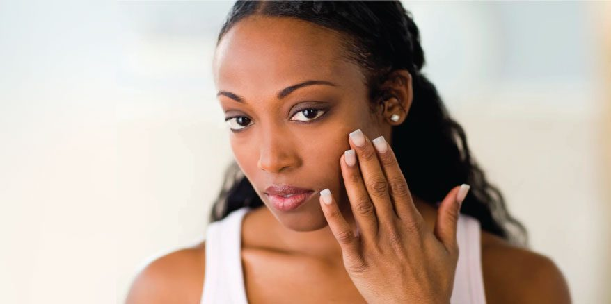 Melasma dark skin treatments