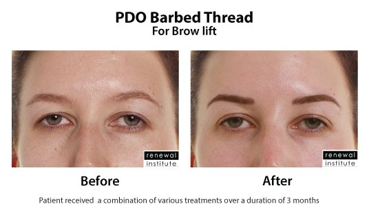 Before And After Pdo Barbed Threads For Brow Lift