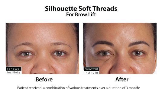 Before And After Silhouette Soft Threads For Brow Lift