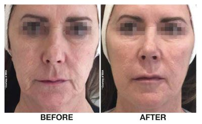 Profhilo Skin Renewal Before and after South Africa