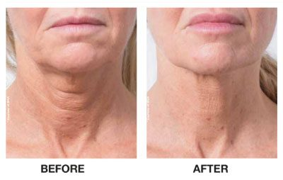Profhilo Skin Renewal Before and after Neck South Africa